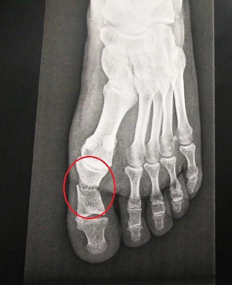 fracture gros orteil que faire