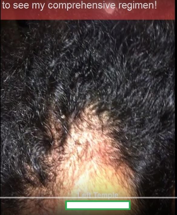 Regrow Hair Naturally Forum